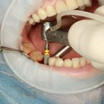 functionare implant dentar