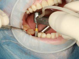 functionare implant dentar