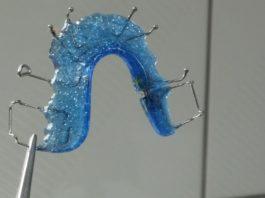 aparat dentar din safir