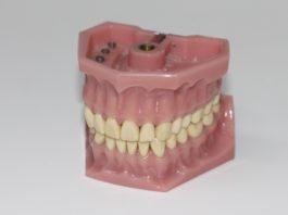 proteza dentara