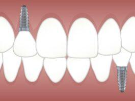 servicii de implantologie